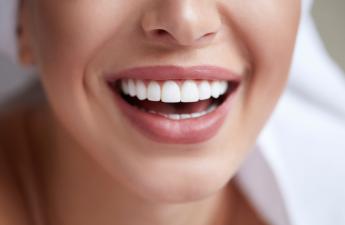 sieviete ar lielisku smaidu, kas sasniegts ar zobu venīriem